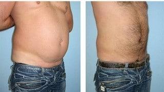 Как похудеть на 10–15 кг всего за две недели — рамблер/женский.