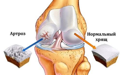 Причина и лечение хруста в суставах, почему хрустят суставы