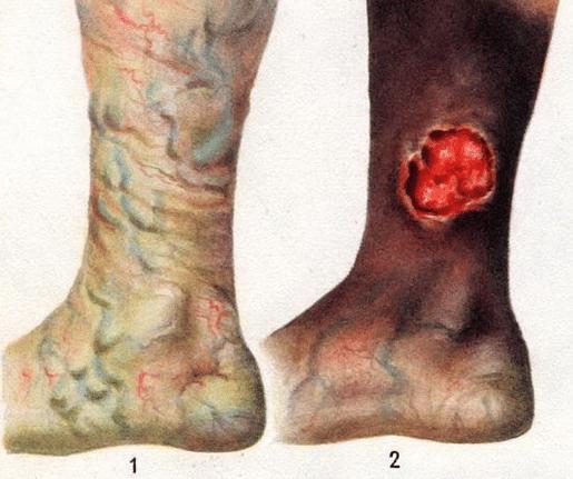 Проявление и лечение варикоза на разных стадиях