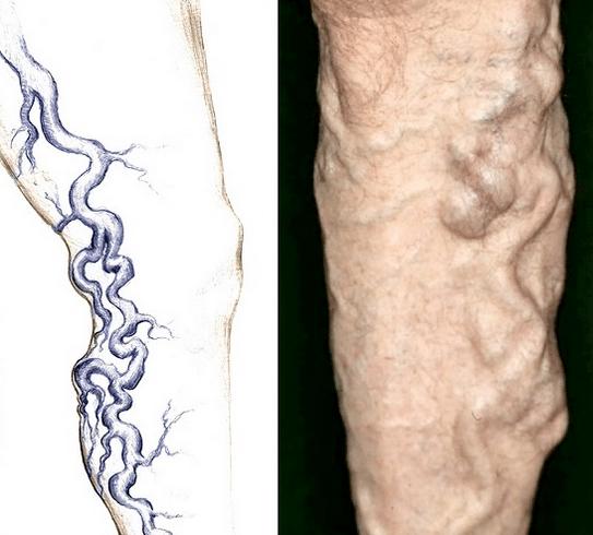 Как лечить варикоз на ногах у женщин