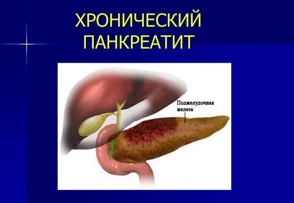 лекарства при гепатите с ценами