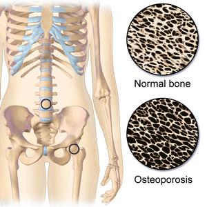 Остеопороз симптомы и лечение. Группа риска.
