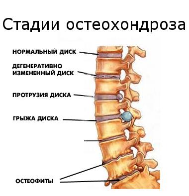 Остеохондроз шейного отдела позвоночника: симптомы и лечение, причины возникновения