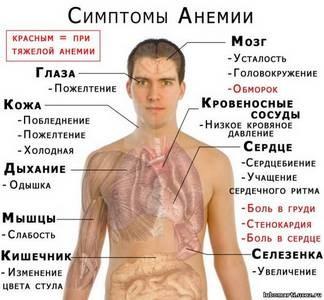 симптомы и лечение анемии
