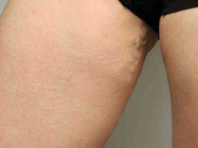 варикоз на интимном месте женщин