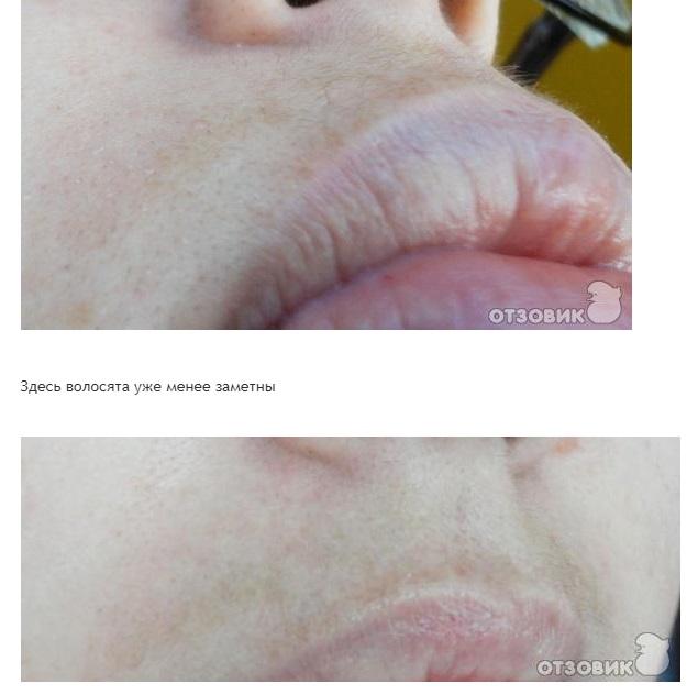 Лазерная эпиляция - отзывы, фото до и после!