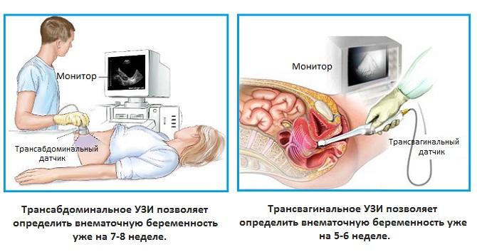 Внематочная беременность - причины, признаки, последствия, лечение